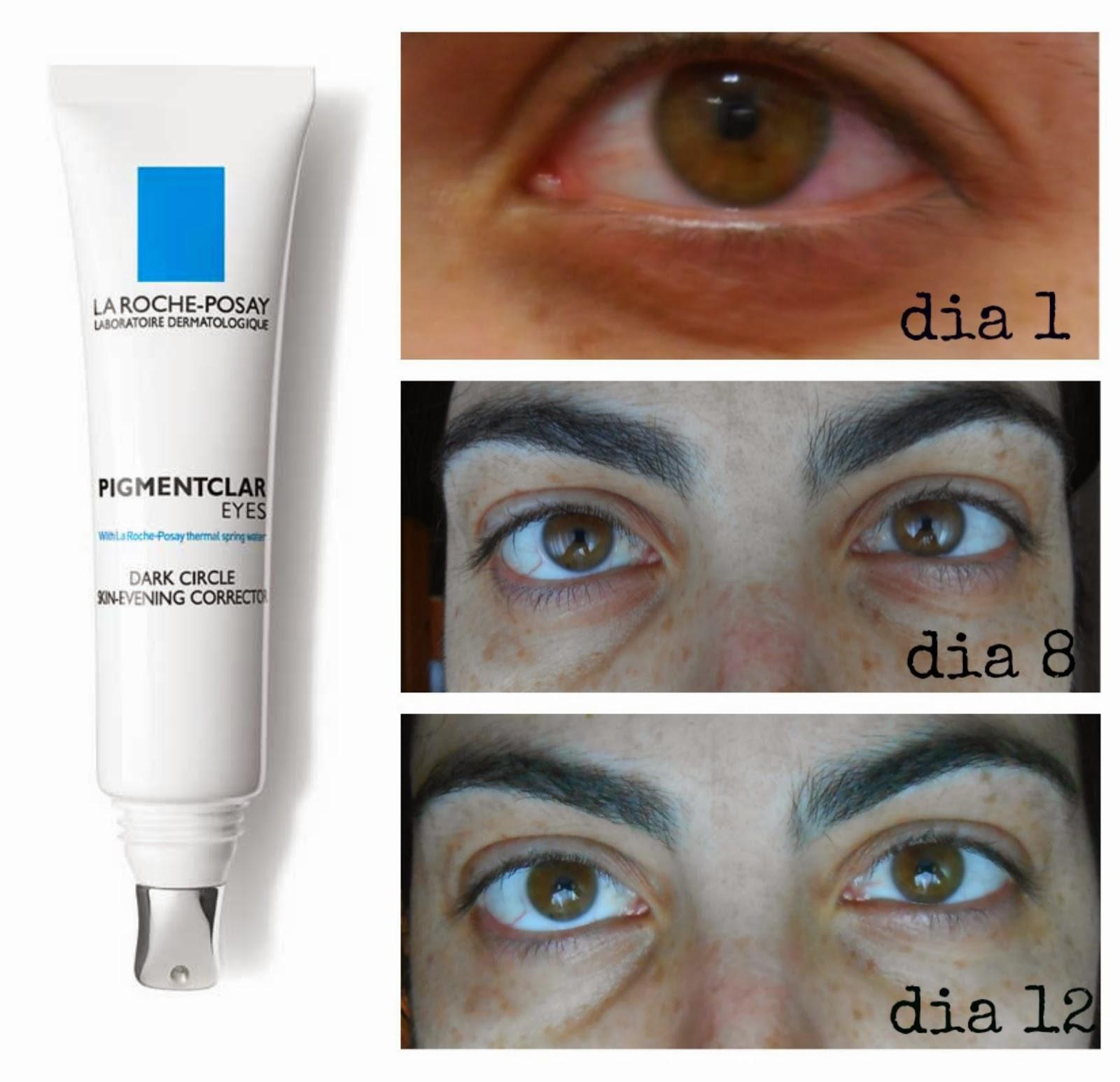 El tratamiento del hinchazón de los ojo a la alergia