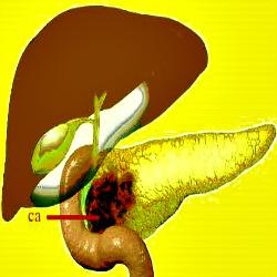Teste de sangue pode detectar precocemente cancer de pancreas