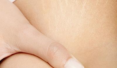 Tips Menghilangkan Stretch Mark Pada Tubuh Dengan Cara Alami