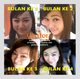 Glutera Glutathione Indonesia