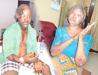 Barren Woman Attacks Husband with Acid in Ibadan (See Photo)