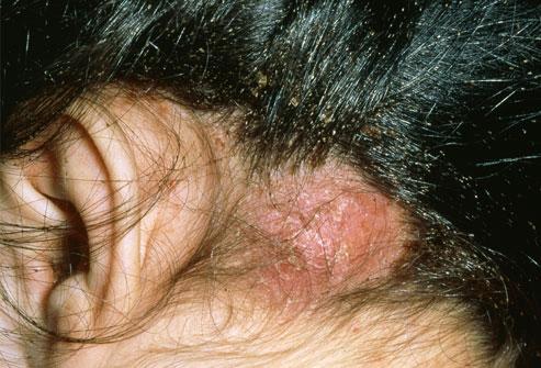 psoriasis black spots