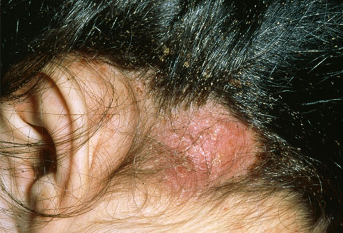 Head Lice Allergies