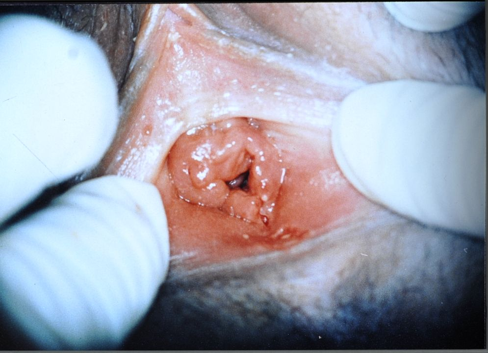 vaginal tearing from sex