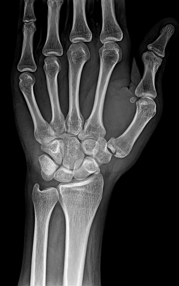 Frontal radiograph of left wrist shows fracture base of 1st metacarpal -2.bp.blogspot.com