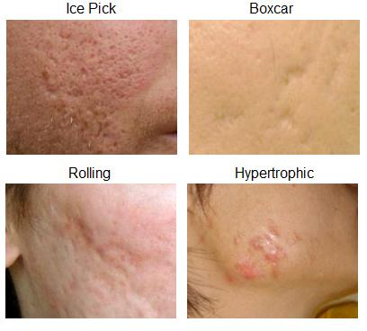 Dr. Sue Ann Wee on Acne Scarring, Types of Acne Scars, and Treatment ...