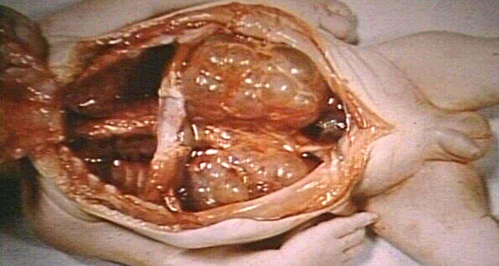 Polycystic Kidney Cyst Burst: Polycystic Kidney Disease ...