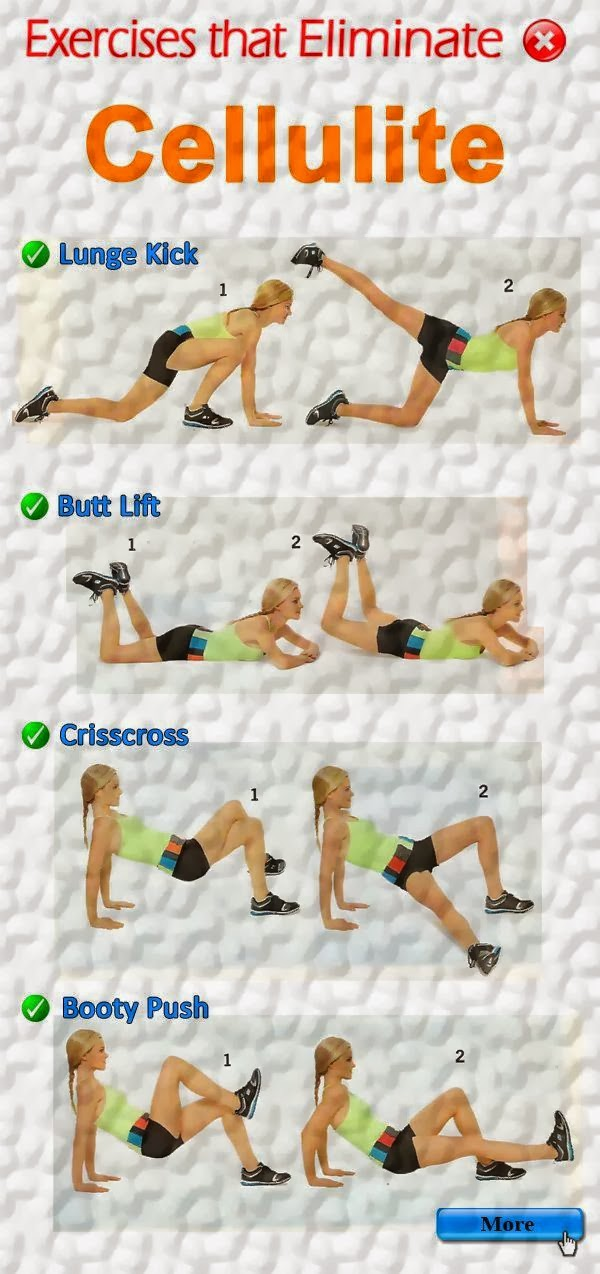Cellulite Elimination Exercise