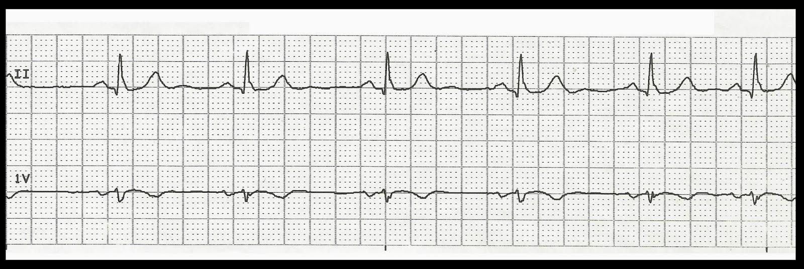 Float Nurse: Practice EKG Rhythm Strips 211