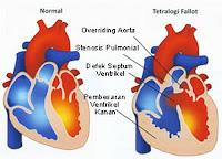 Jantung Bocor Bawaan