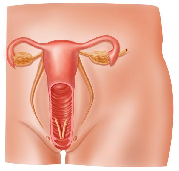 Menopausia y Ginecología Geriátrica
