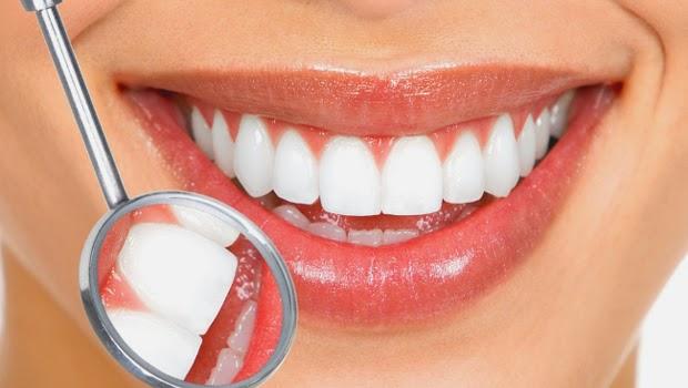Cara merawat kesehatan gigi dengan benar