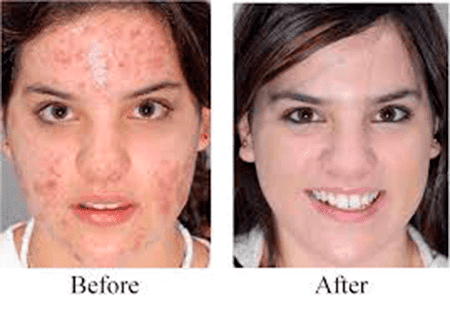 Image result for acne before and after