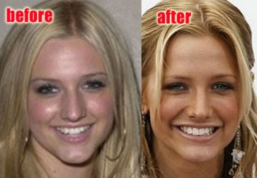 Celebrity nose jobs ashlee simpson