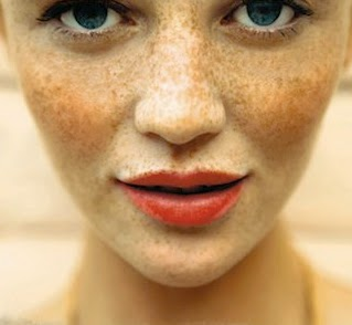 how to get rid of body freckles