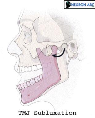 Temporomandibular Joint (TMJ) Disorders : Subluxation Definition, Causes, Treatment