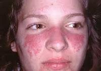 gejala sakit lupus