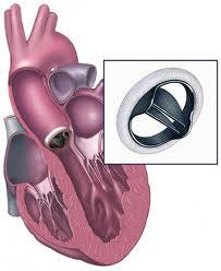 penyebab bedah jantung
