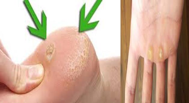 La várice varicosa como curar