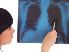Asocierea dintre citostatice si terapia naturista pentru cancerul pulmonar