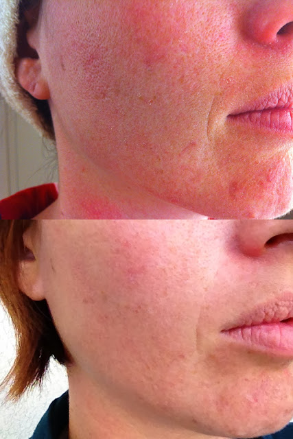 3 months results using Nerium AD anti-aging night cream