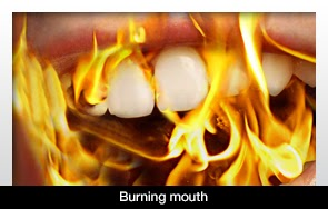 Burning Mouth Syndrome Neurontin