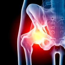 Affordable Hip replacement surgery in India