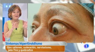 Saber Vivir, TVE, síntomas del hipertiroidismo