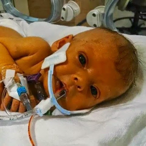baby with medical tubing
