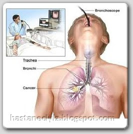 bronkoskopi nasıl yapılır, bronkoskopi nasıl olur