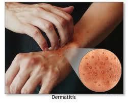 allergic dermatitis emedicine