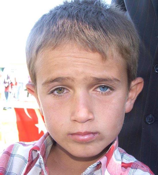 Blue Eyes Boys Eye And One Blue Eye