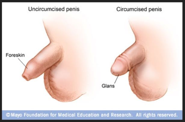 Masturbation After Circumcision 70