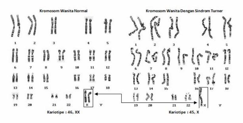 Dunia hanifanan mutasi biologi kelas xii penderita sindrom turner berjenis kelamin wanita meskipun penderitanya memiliki jenis kelamin wanita ia tidak memiliki ovarium yang sempurna steril ccuart Images