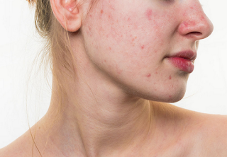 How to get rid of acne by understanding the true cause of the problem