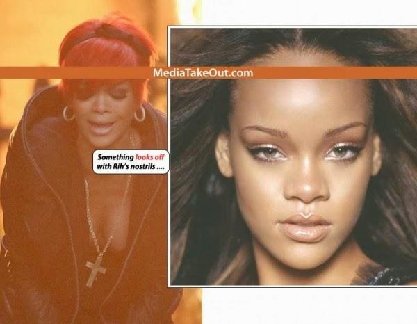 Chirurgie rihanna s 39 est refaite le nez photo avant et apres people buzz - Rihanna avant apres ...