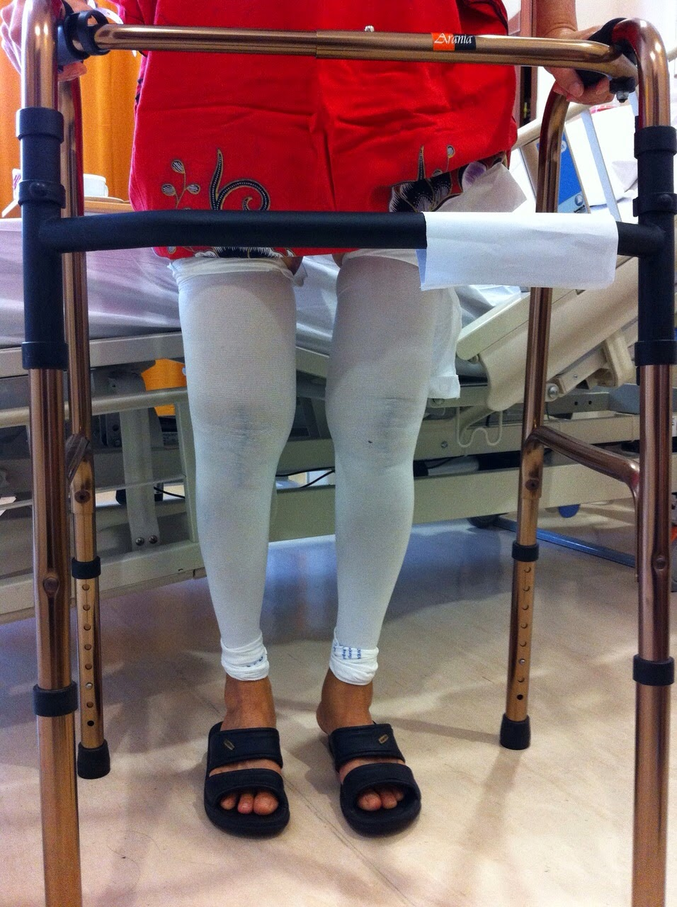 total knee replacement bilateral vs unilateral It's called bilateral knee replacement now there is a solution to in-home recovery from two knee replacements at once  the number of bilateral total knee.