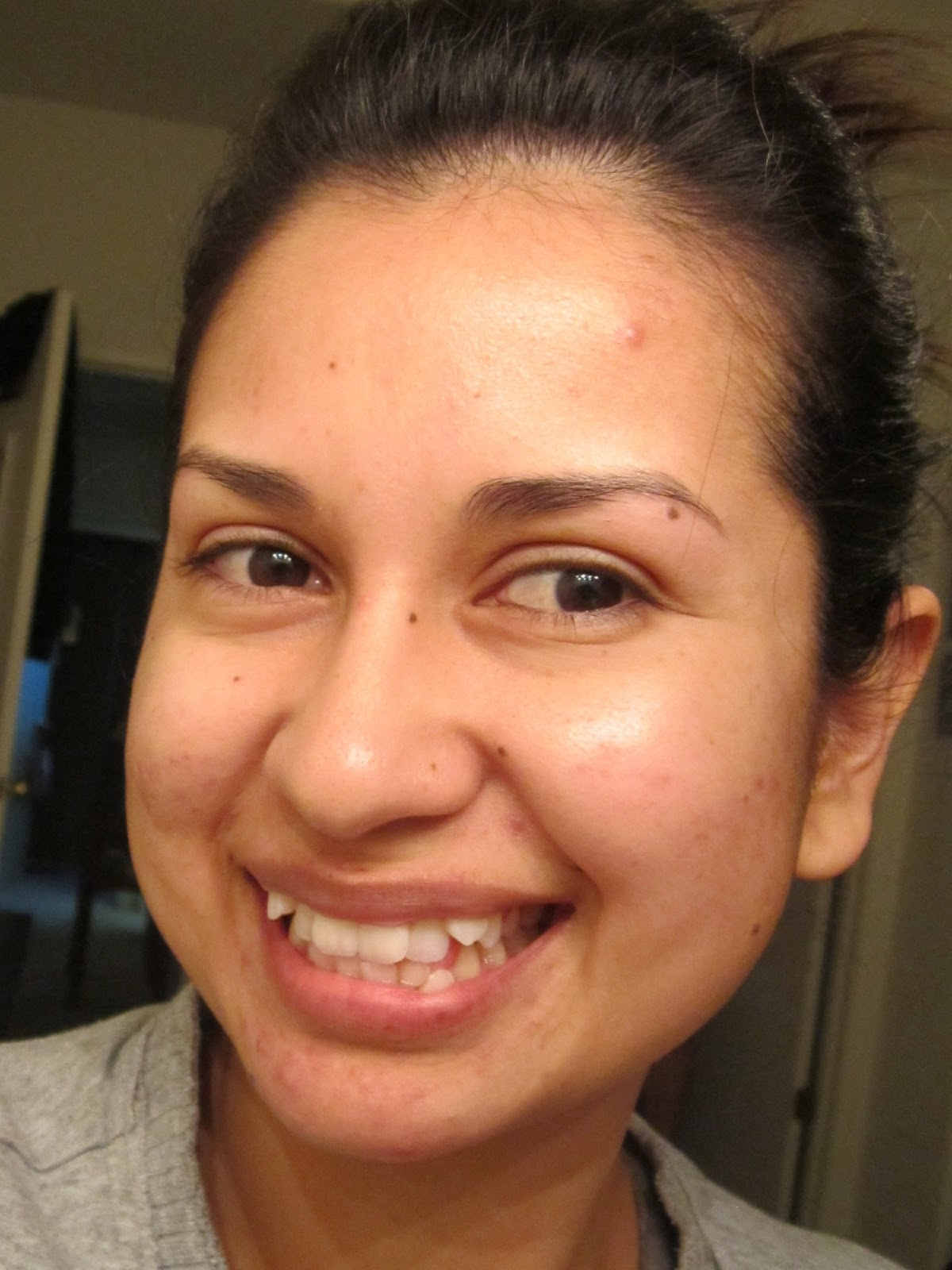 Blog about facial discoloration