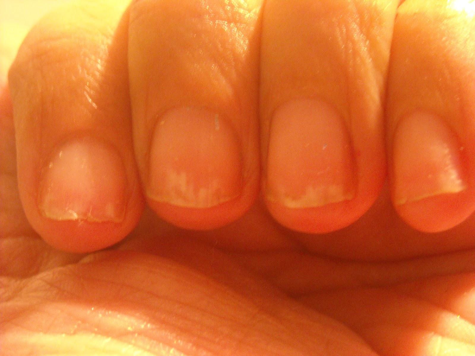 Чем укреплять ногти в домашних условиях йодом 647