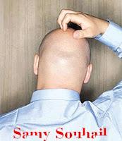طرق طبيعية لمعالجة تساقط الشعر