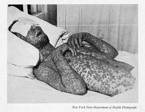 an analysis of smallpox During the global program of smallpox eradication, the world health organization variola minor: a personal analysis of 13,686 cases bull hyg 194823: 735-746.