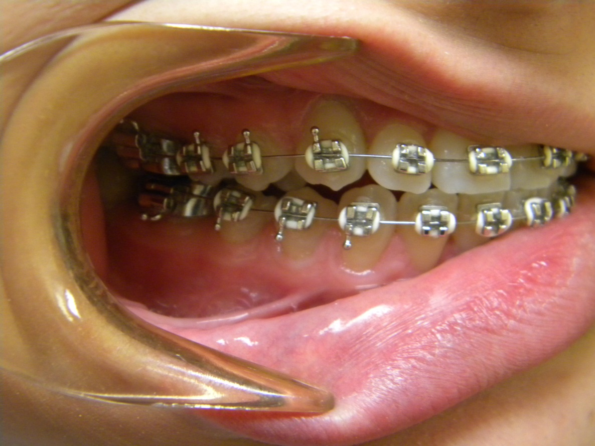 oral sex with braces
