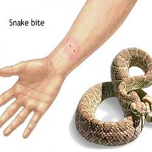 contoh bekas gigitan ular berbisa