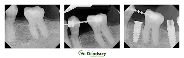 Dental implant, orthodontic treatment, cosmetic dentistry, Vo Dentistry, Immediate Implant, dental implant, inplants, Cosmetic Dentistry, same day implant, same day crown, Lawrenceville, Norcross, Lilburn, Dacula, buford, duluth, snellville, hamilton mill, grayson, sugar hill, sugar loaf, GA, Georgia, 30019, 30044, 30045