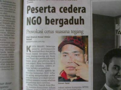 Penyokong Umno Pondan. Malu Beb Bab Isu Demo Di SUK Kelantan