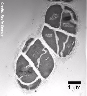 A Micrograph Of Methanosarcina Barkeri Cells