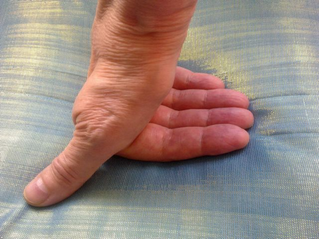 Stiffness and pain thumb