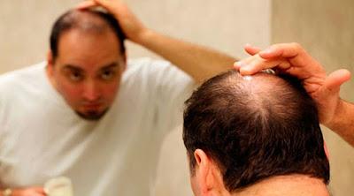 Cara Mengatasi Kebotakan Dan Rambut Rontok