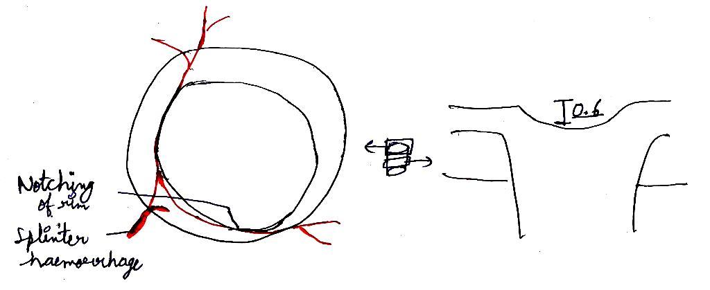 mbbs doctors  open angle glaucoma  poag