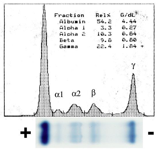Exame proteina s